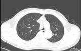 一直在前进,永远在路上——州一医院呼吸与危重症医学科成功完成凉山州首例全麻下经支气管镜气道肿瘤切除术